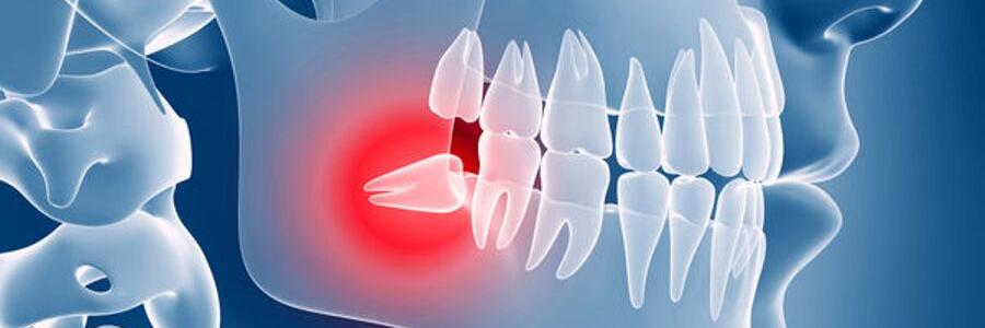 wisdom teeth impact